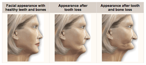 advantages-of-dental-implants
