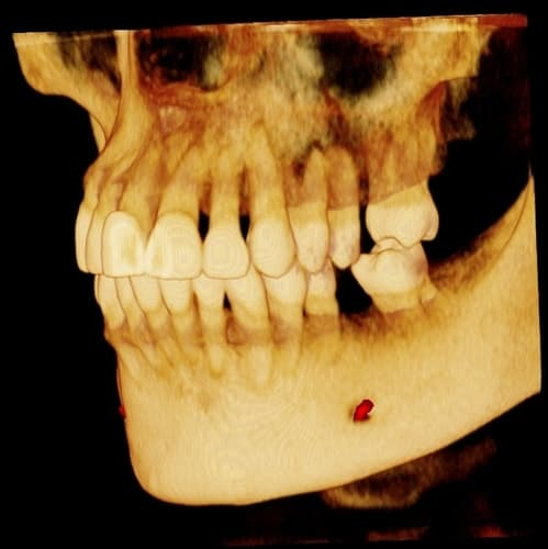 3-d-x-ray-scan-dental-implants
