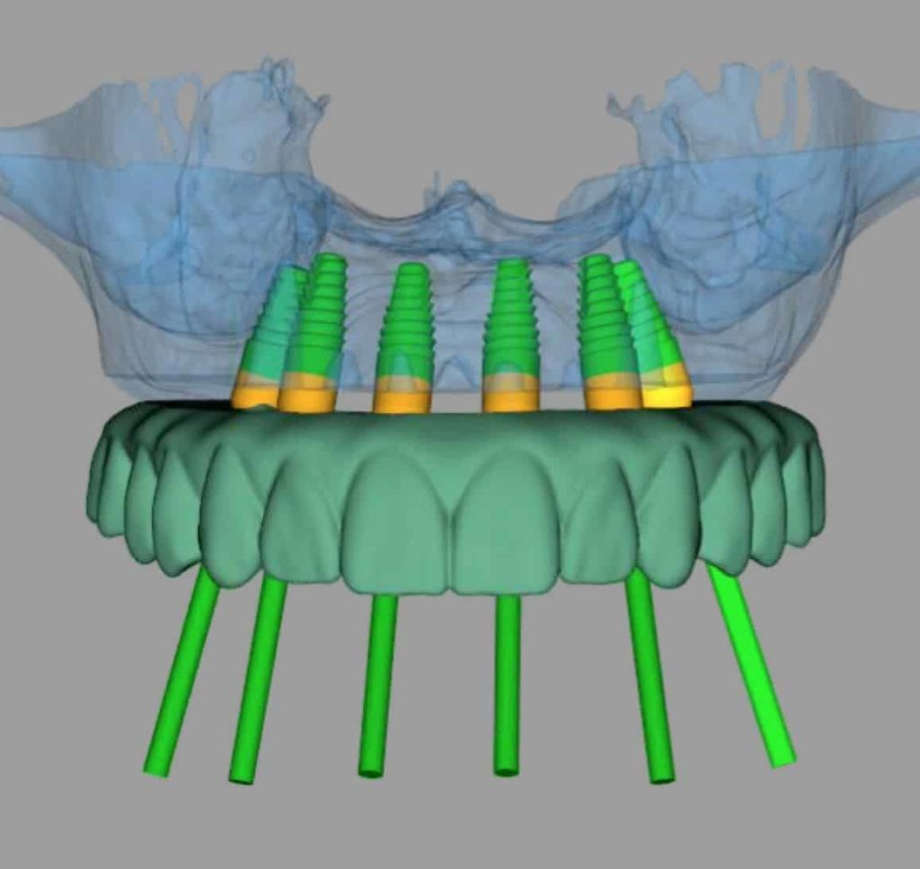 fully guided dental implant virtual plan