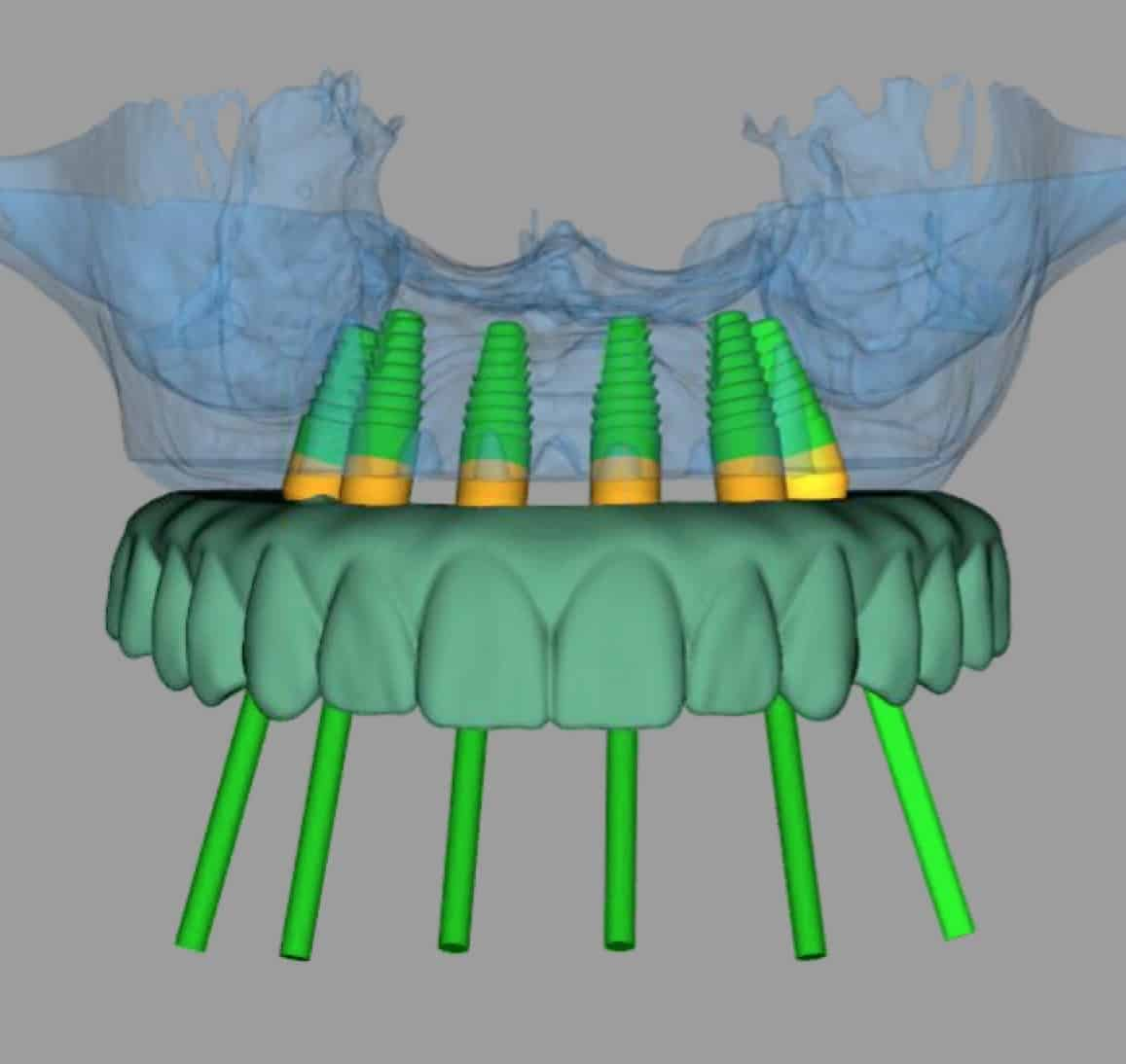 fully-guided-dental-implant-surgery