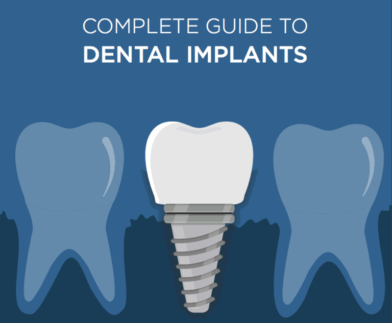 Complete Guide to Dental Implants