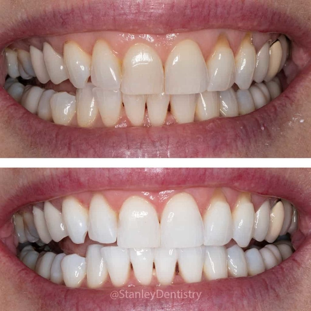 Kor Whitening Results on a dental patient