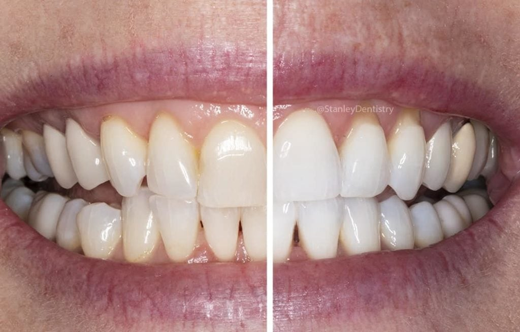 Teeth Whitening Options In Cary Nc Stanley Dentistry