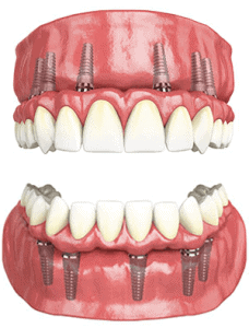 screw-retained dentures