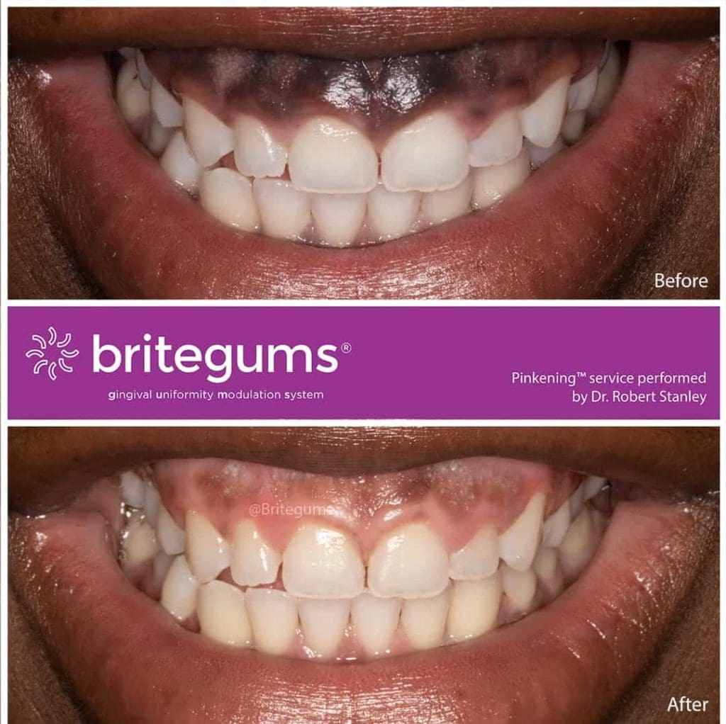 treat black gums