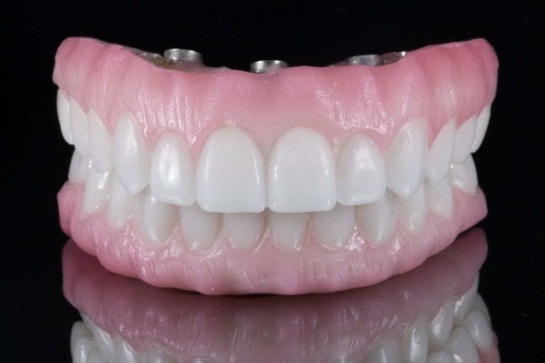 dentures in Cary NC