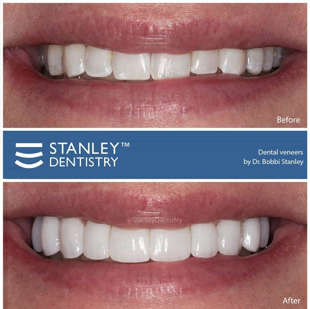 dental veneers cary NC