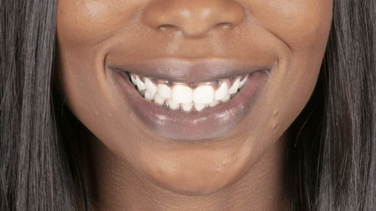 What causes black gums