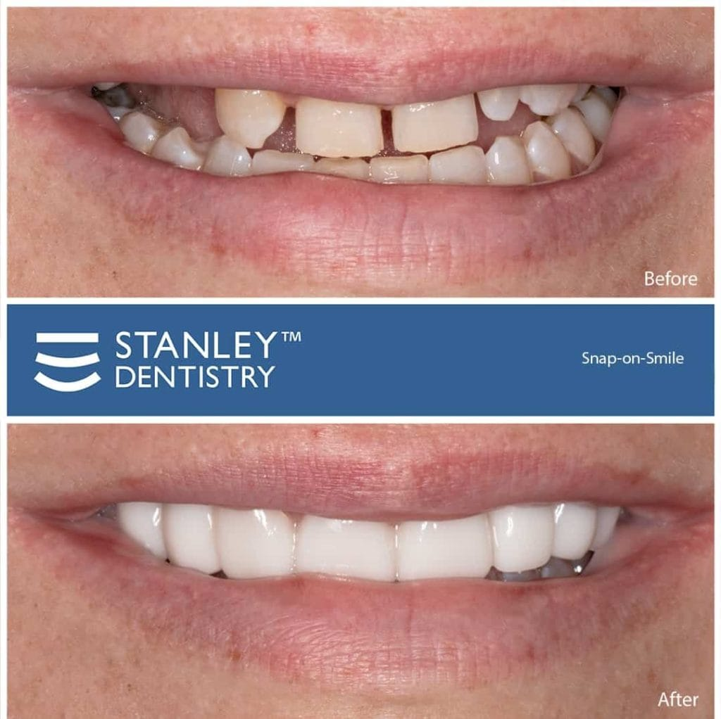 snap on veneers before and after