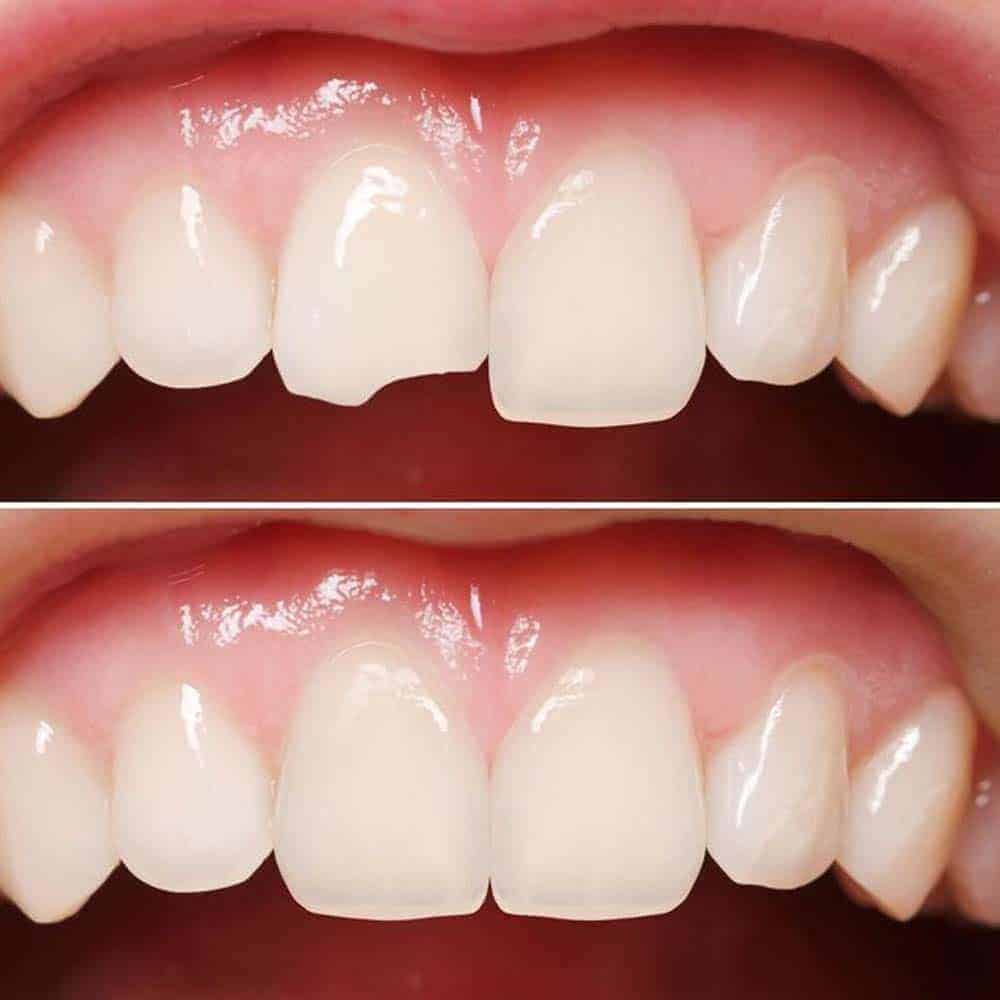 Chipped teeth before and after