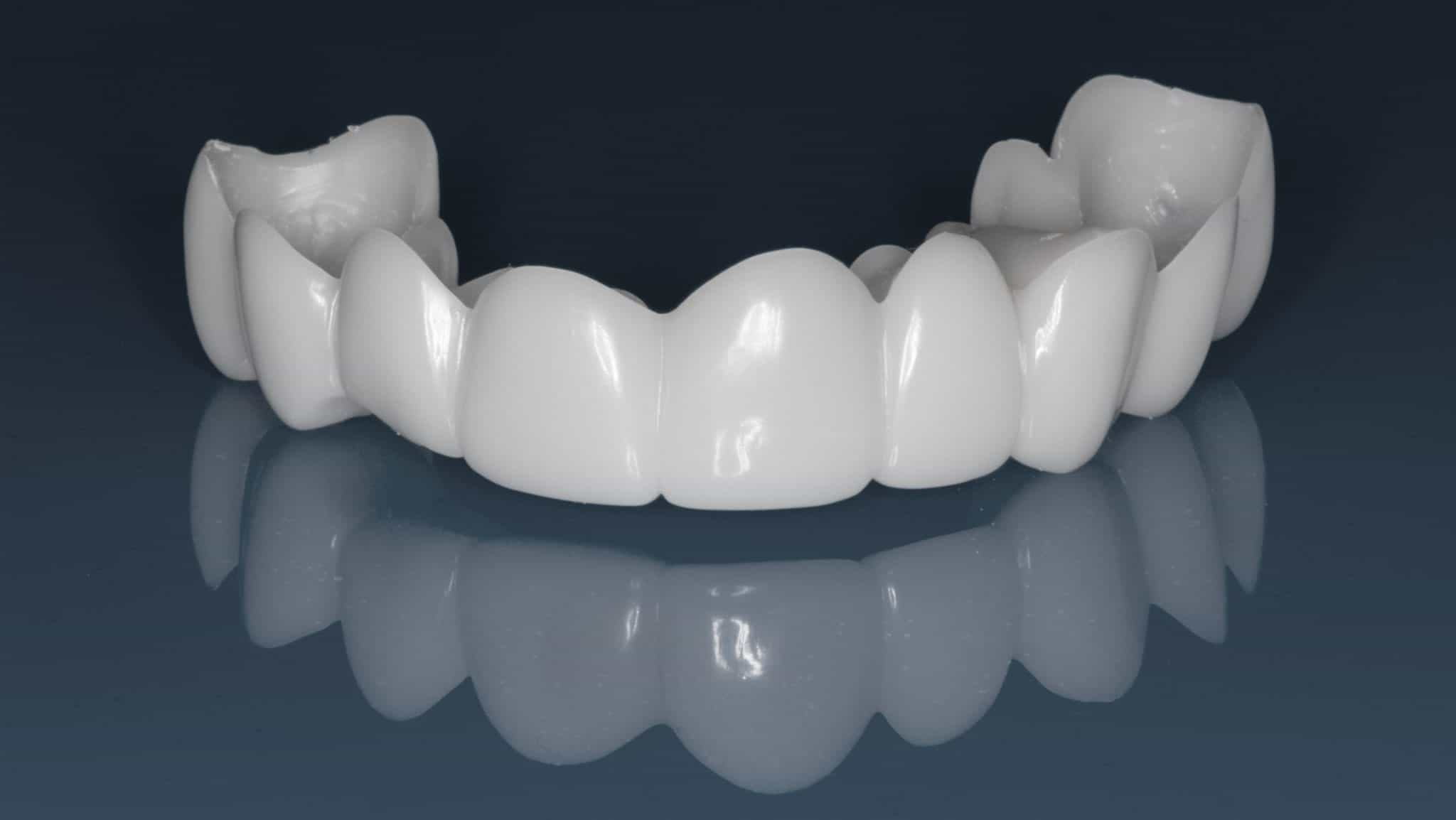 picture of Snap on smile veneers