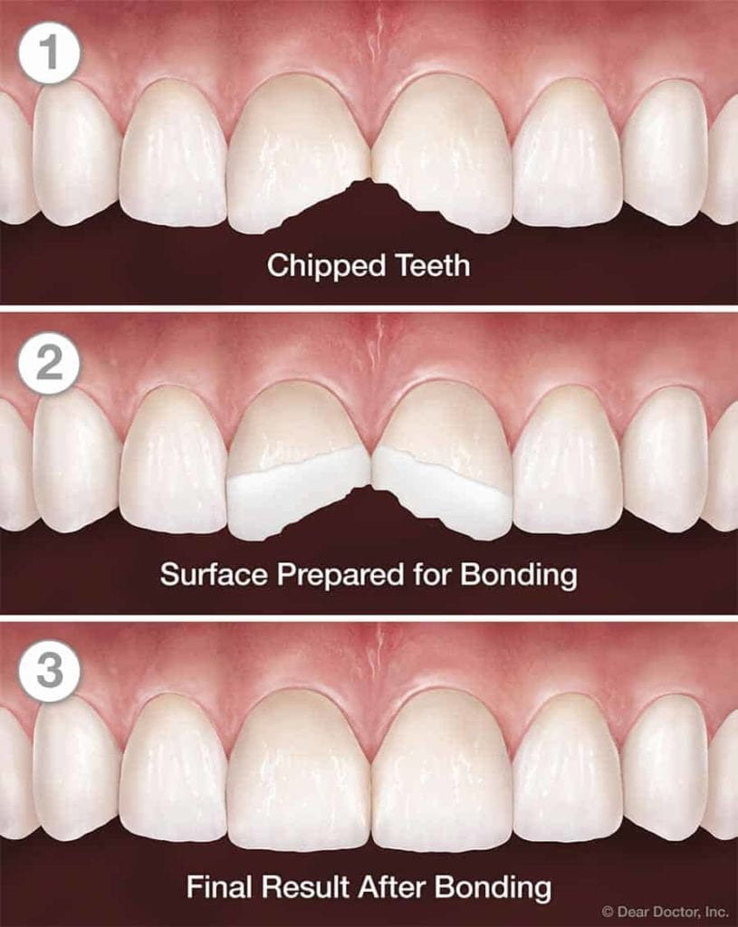 dental bonding chart