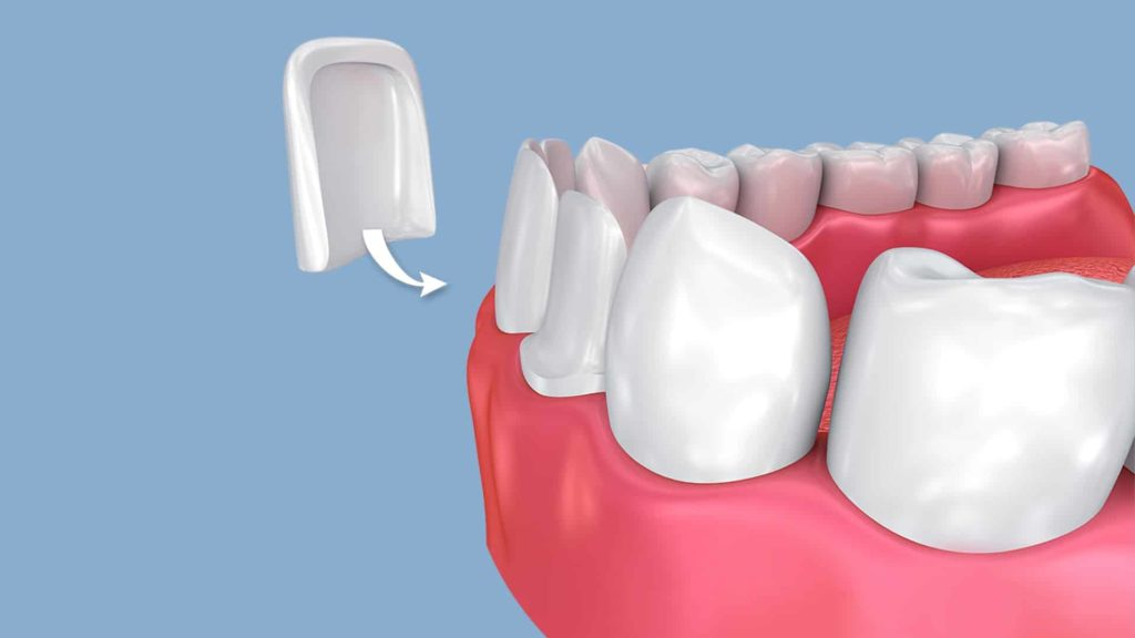 image showing veneers being put on a tooth