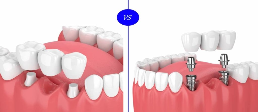 dental bridge vs dental implant