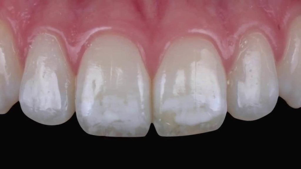 close up of teeth with mild fluorosis