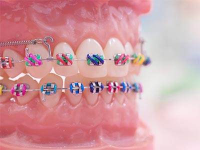 model of teeth with multi colored metal braces