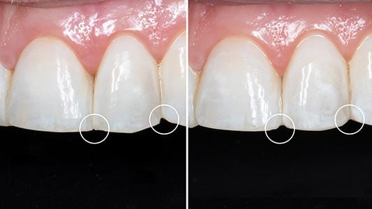 Before and After image of teeth that had an Enameloplasty procedure performed on them