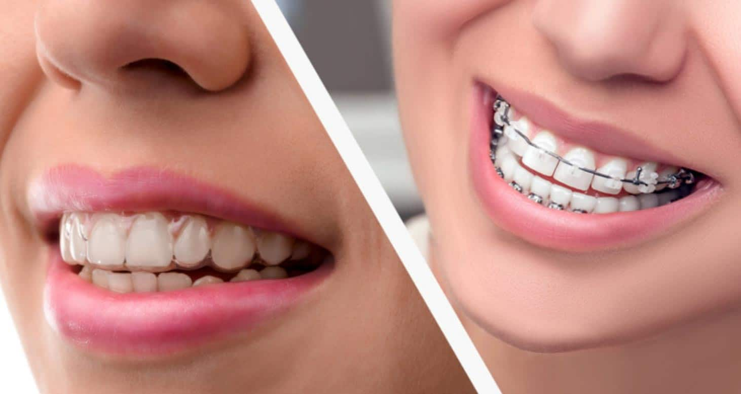 braces invisalign - Stanley Dentistry in Cary, NC