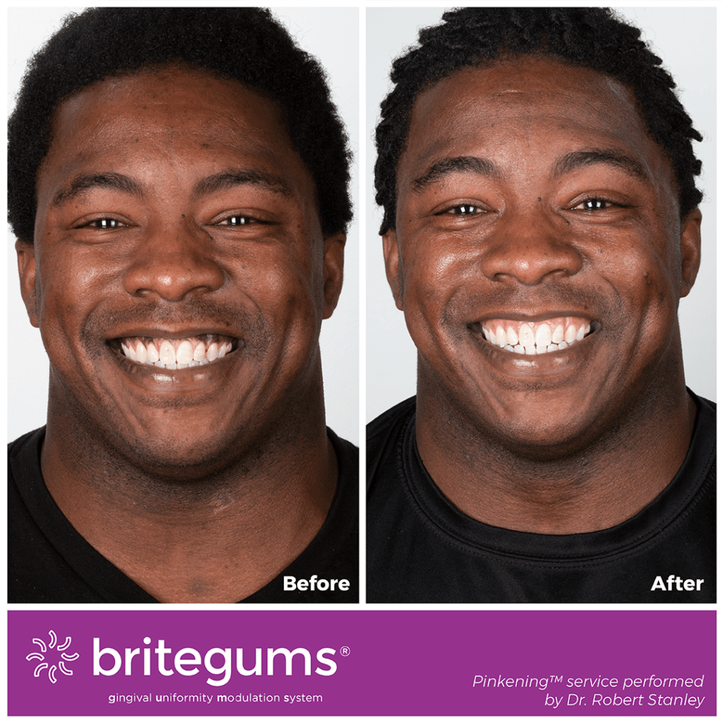 purple gums before after
