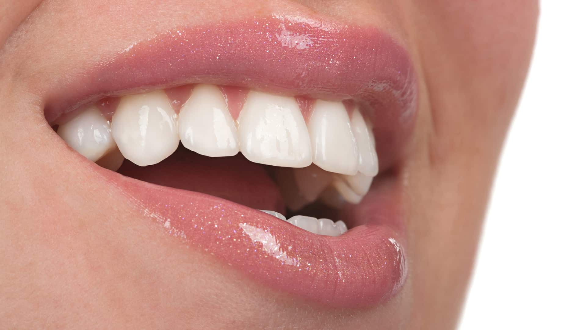 woman with veneers - Stanley Dentistry in Cary, NC