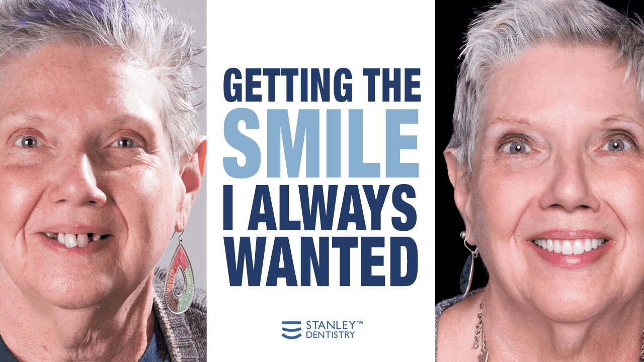 full mouth dental implants - Stanley Dentistry in Cary, NC