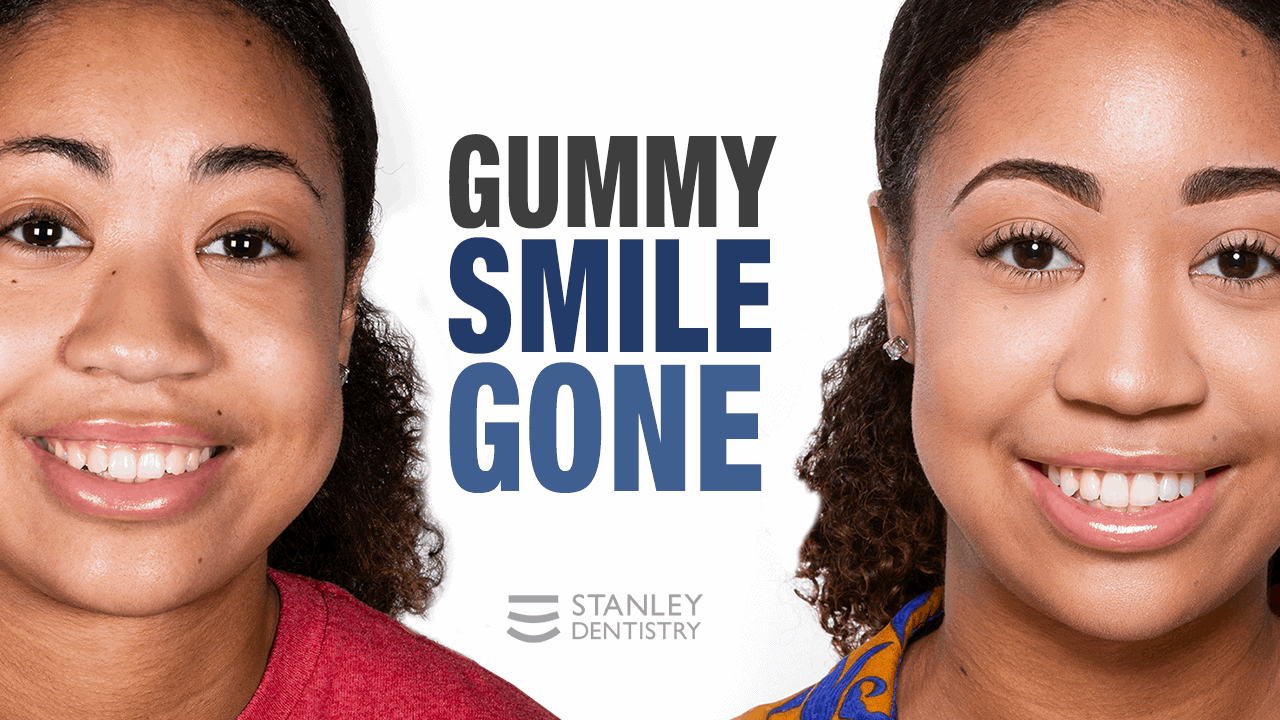 gummy smile transformation - Stanley Dentistry in Cary, NC