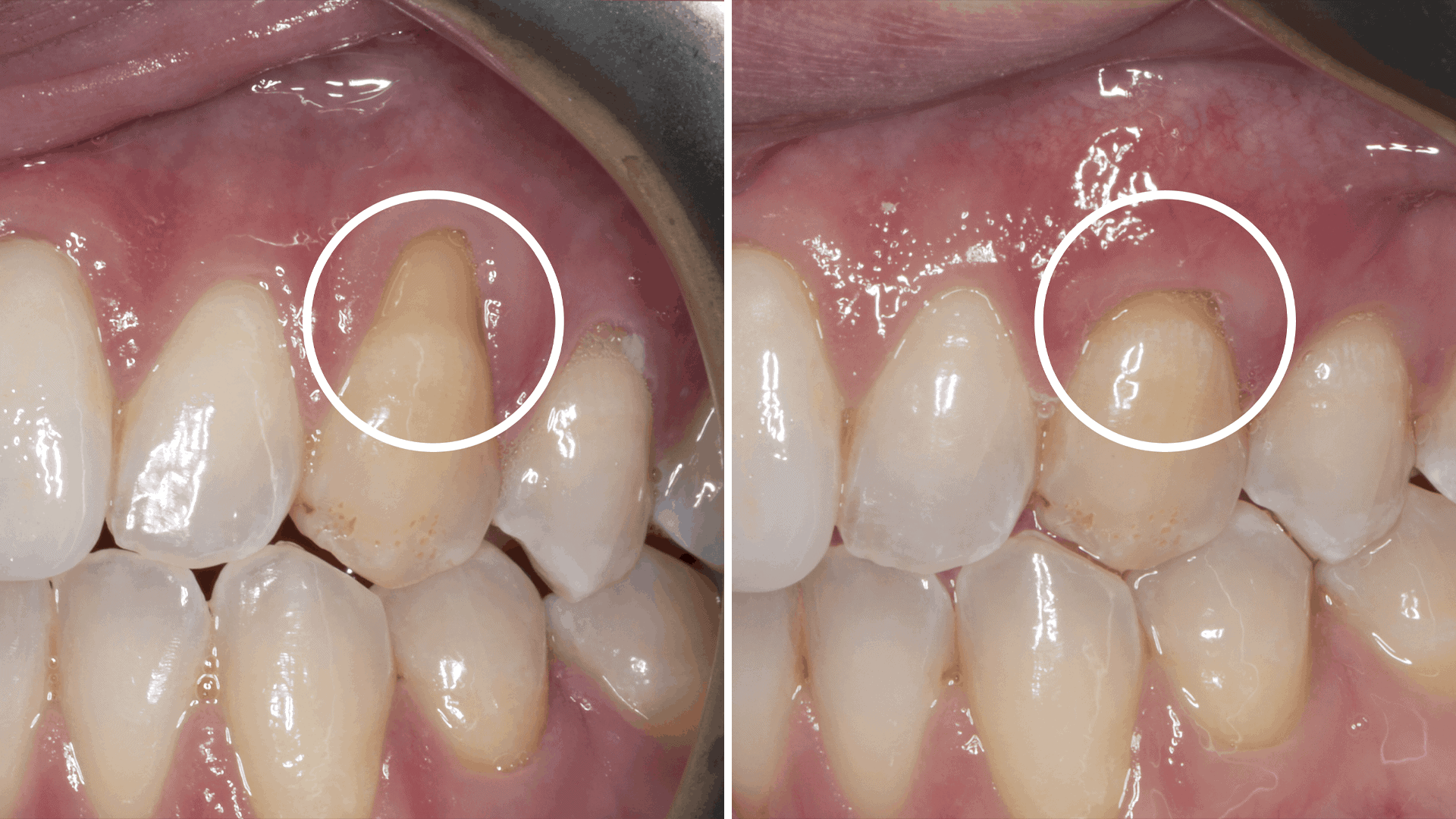 gum grafting - Stanley Dentistry in Cary, NC
