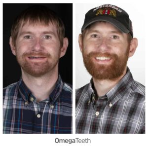 omega teeth implants